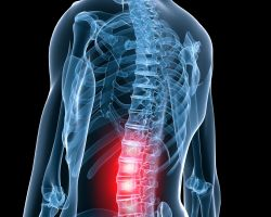 Low back pain hurts more than just your back